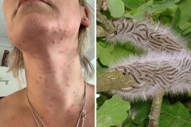 Children left 'screaming in pain' after poisonous caterpillars found in Bromley