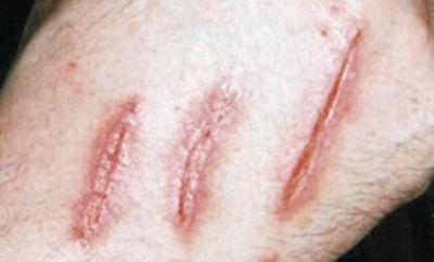 News Shopper: Man scratched by lynx in Kent