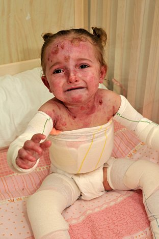 Orpington Three Hours Of Heartache For Epidermolysis