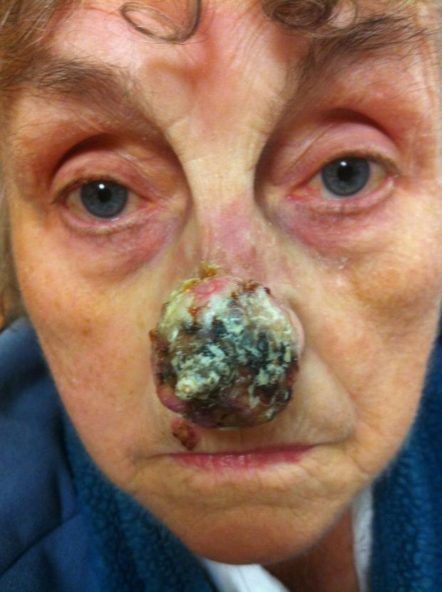 News Shopper: Golda has been left with a hole in her nose since the growth was removed.