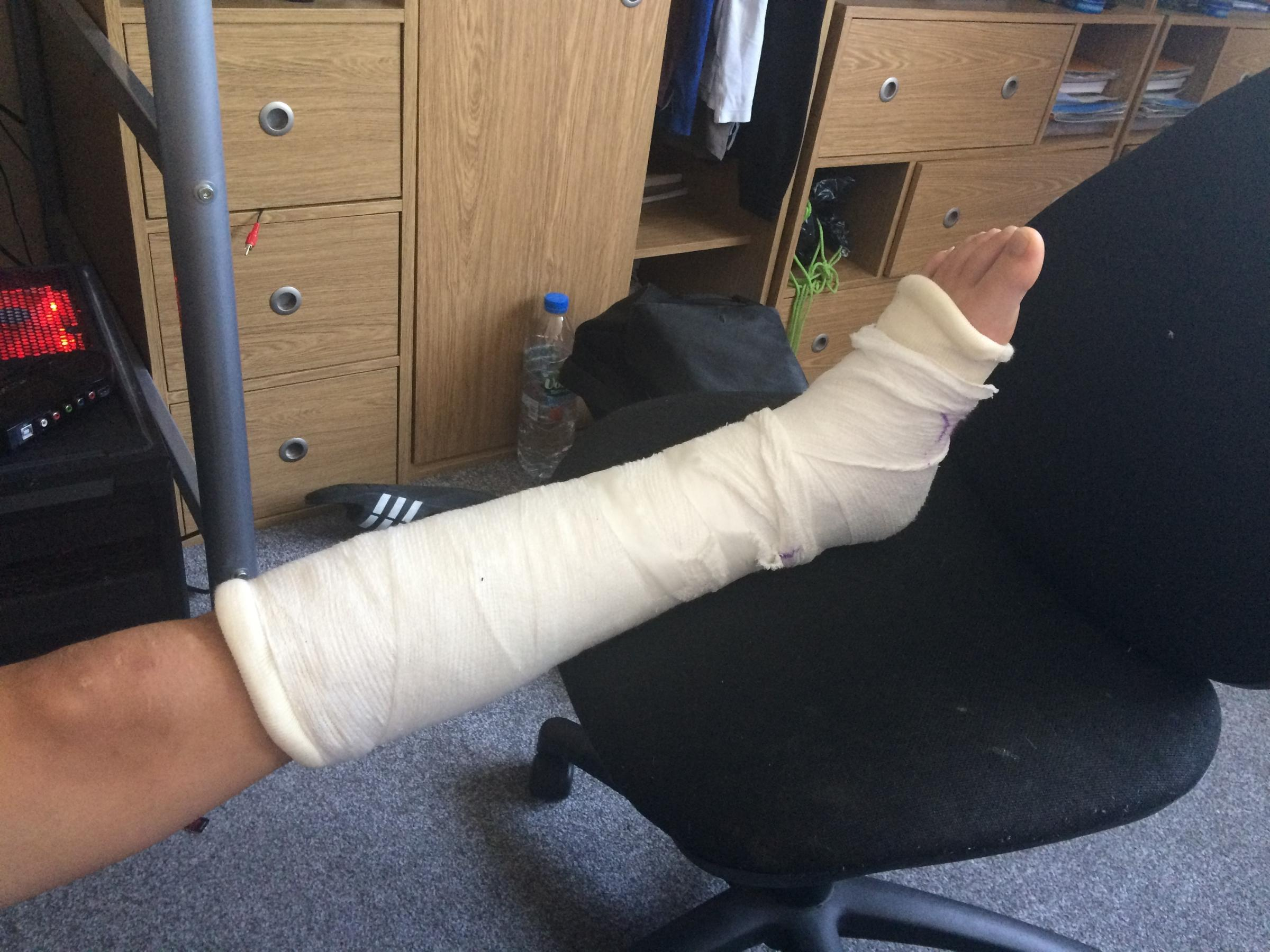 Callum has to have a cast on his leg until his injuries heal